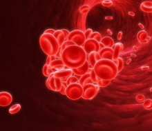 Anemia y demencia están más unidas de lo que parece